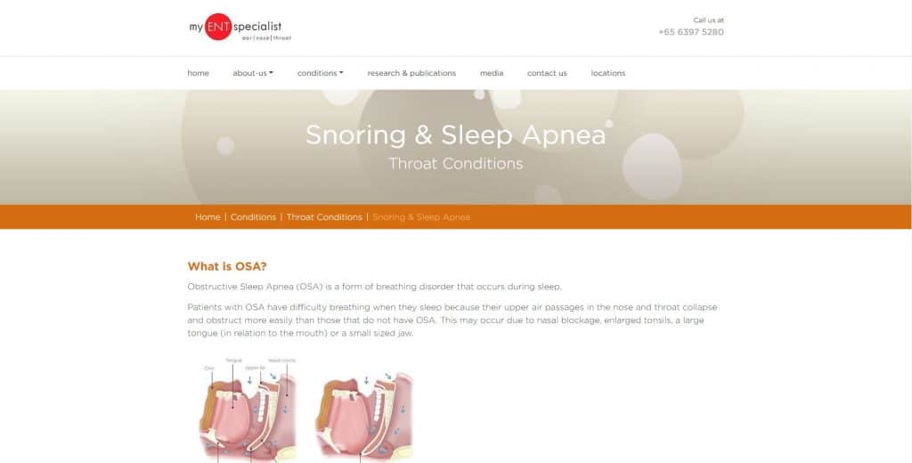 best sleep clinic in singapore_my ent specialist