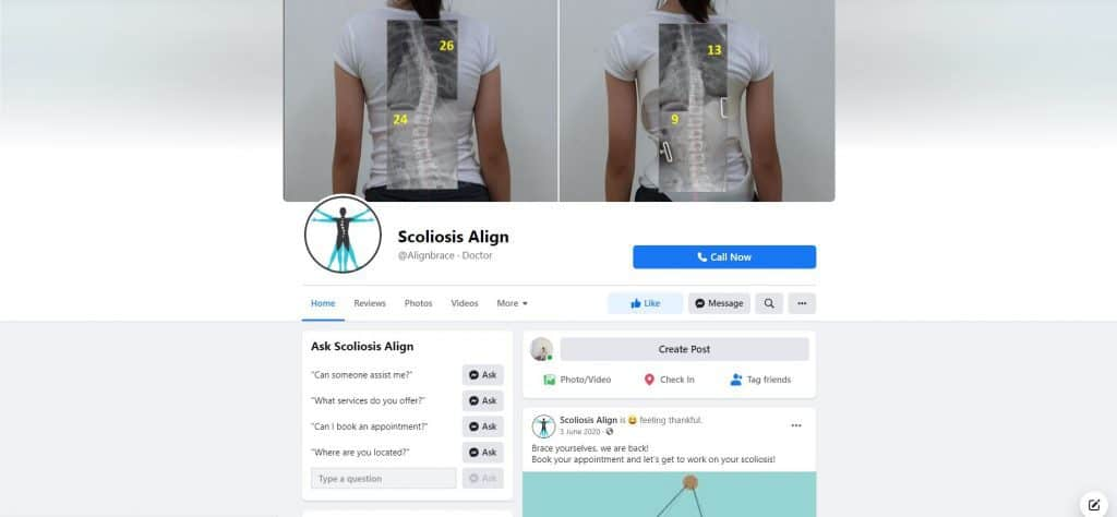 best spine specialist in singapore_scoliosis align