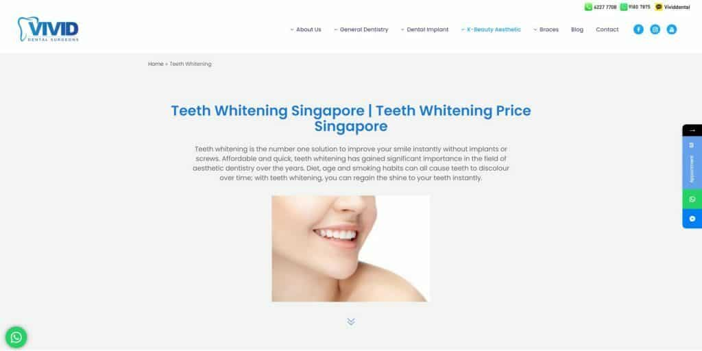 best teeth whitening in singapore_vivid dental surgeons