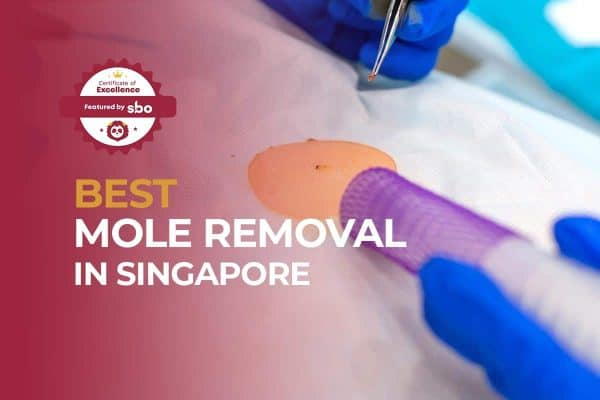featured image_best mole removal in singapore