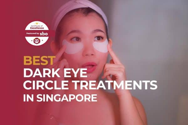 featured image_best dark eye circle treatments in singapore