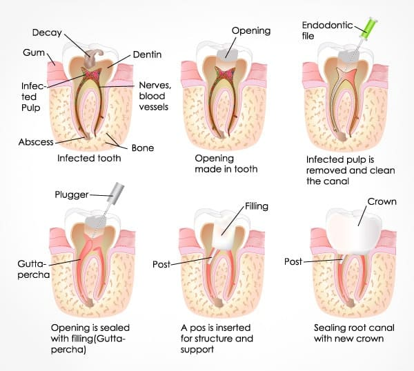 best root canal treatment in singapore
